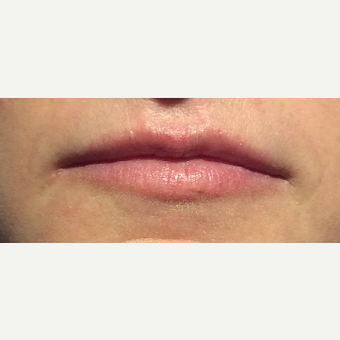 35-44 year old woman treated with Lip Augmentation before 3470324