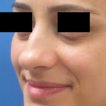 25-34 year old woman treated with Rhinoplasty before 2919712