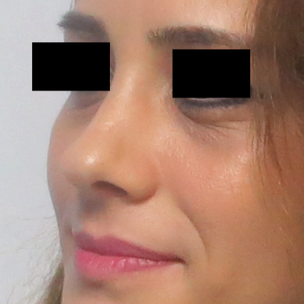 25-34 year old woman treated with Rhinoplasty after 2919712