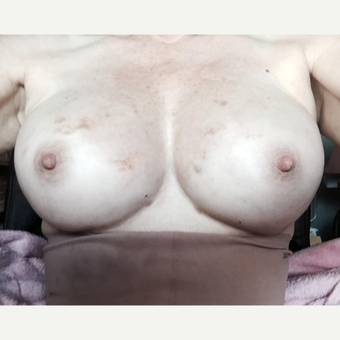 55-64 year old woman treated with Fat Transfer after 3219401