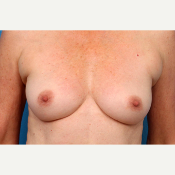 55-64 year old woman treated with Fat Transfer before 3219401