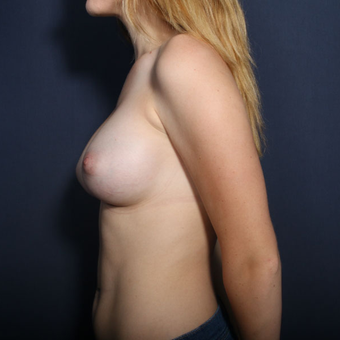 18-24 year old woman treated with Breast Augmentation (view 2 of 2) after 2994346