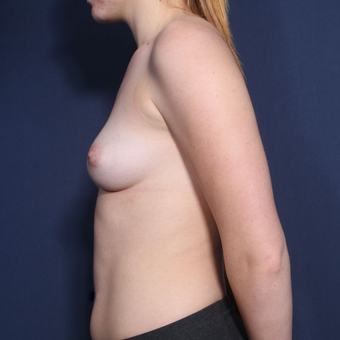 18-24 year old woman treated with Breast Augmentation (view 2 of 2) before 2994346
