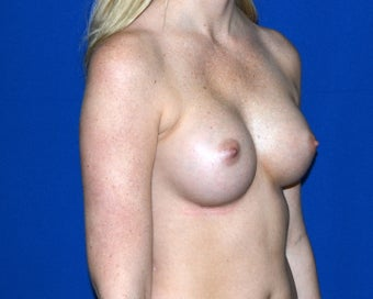 28 year old female treated to increase breast size with implants after 1311771