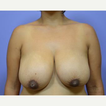 35-44 year old woman treated with Breast Reduction before 3415977