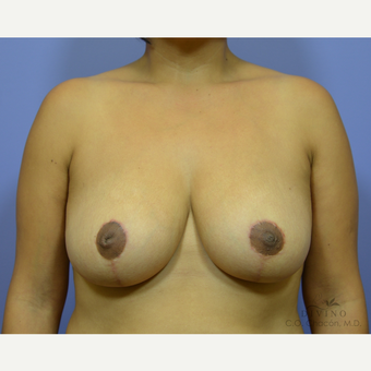 35-44 year old woman treated with Breast Reduction after 3415977