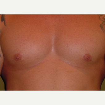 25-34 year old man treated with Male Breast Reduction after 3621694