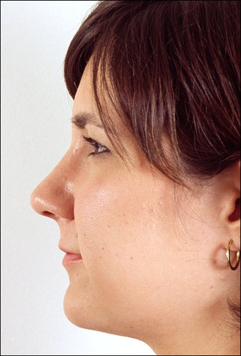 Rhinoplasty for a projecting nose with a hump