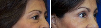 45-54 year old woman treated with Restylane before 1915378