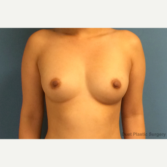 30 year old woman with saline breast Implants before 3088657