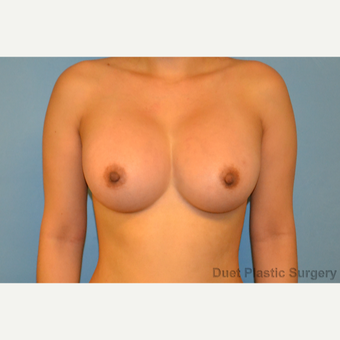 30 year old woman with saline breast Implants after 3088657