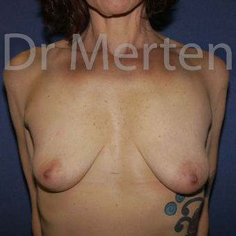 35-44 year old woman treated with Breast Lift with Implants before 3631363