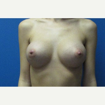 26 year old woman 400cc silicone gel implants after 2511053