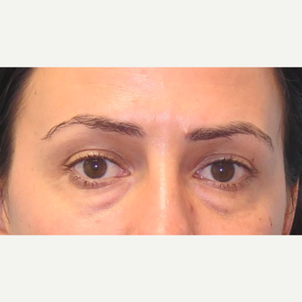 35-44 year old woman treated with Eyelid Surgery before 3550245