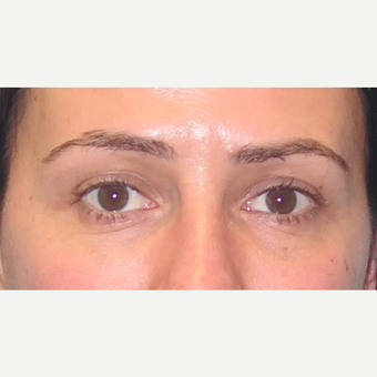 35-44 year old woman treated with Eyelid Surgery after 3550245