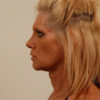 50 year old transgender woman underwent Facial Feminization Surgery before 3109957