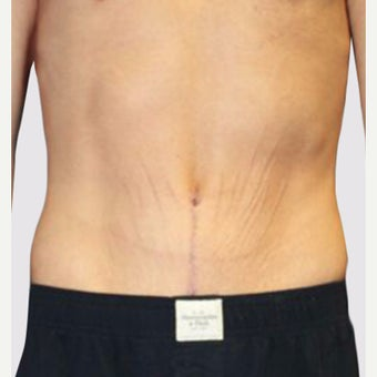 35-44 year old man treated with Tummy Tuck after 2066809