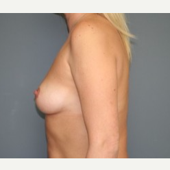 35-44 year old woman treated with Breast Implants before 3304189