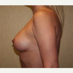 35-44 year old woman treated with Breast Implants after 3304189