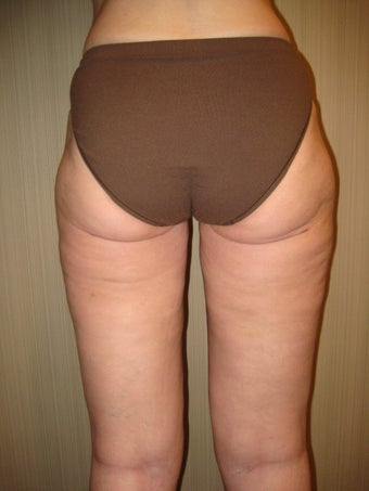 53 year old female treated for cellulite after 840659