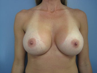Sub-pectoral Breast Augmentation Silicone 371cc after 1500338