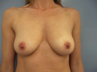 Sub-pectoral Breast Augmentation Silicone 371cc before 1500338