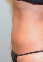 38 Year Old Female for CoolSculpting after 1393854