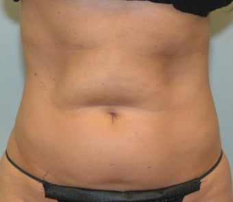 38 Year Old Female for CoolSculpting 1393854