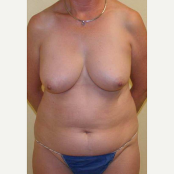 55-64 year old woman treated with Mommy Makeover before 3434635