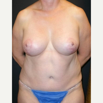 55-64 year old woman treated with Mommy Makeover after 3434635