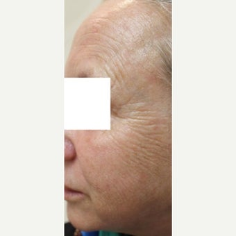 55-64 year old woman treated with CO2 Laser 1907115