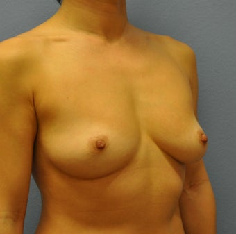 Breast Augmentation, Breast Implants 1083028