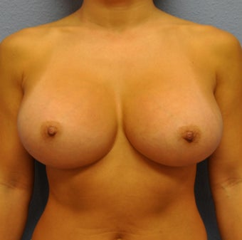 Breast Augmentation, Breast Implants after 1083028