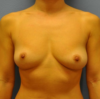 Breast Augmentation, Breast Implants before 1083028