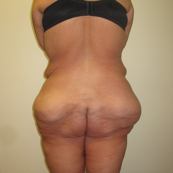 35-44 year old woman treated with Brazilian Butt Lift before 3411438