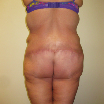 35-44 year old woman treated with Brazilian Butt Lift after 3411438