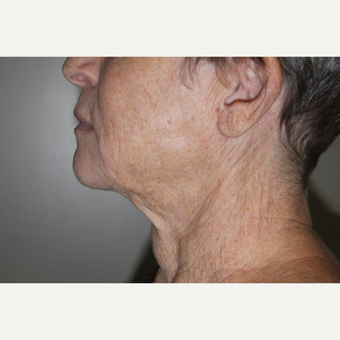 65-74 year old woman treated with Smart Lipo to the neck after 2994424