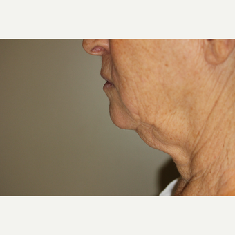 65-74 year old woman treated with Smart Lipo to the neck before 2994424