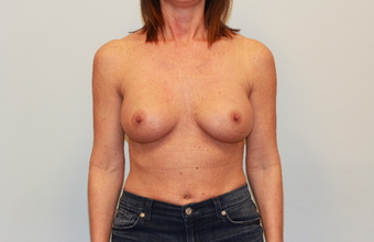 35-44 year old woman treated with Breast Implant Revision