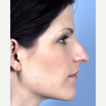 25-34 year old woman treated with Rhinoplasty before 3815704