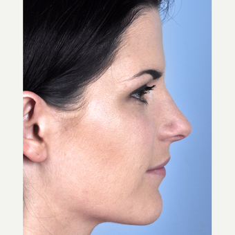 25-34 year old woman treated with Rhinoplasty after 3815704