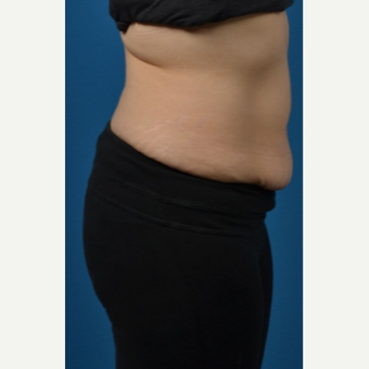 35-44 year old woman treated with SculpSure after 3414121
