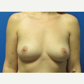 37 year old woman 550cc ultra high profile breast implants before 3370868