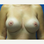 37 year old woman 550cc ultra high profile breast implants after 3370868