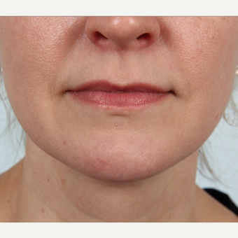 25-34 year old female who had a mole removed from her chin after 3212142