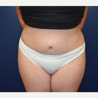 45-54 year old woman treated with Tummy Tuck after 3331652