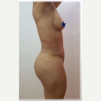 25-34 year old woman treated with Brazilian Butt Lift after 3288212