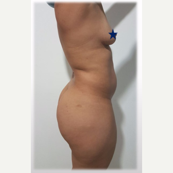 25-34 year old woman treated with Brazilian Butt Lift before 3288212