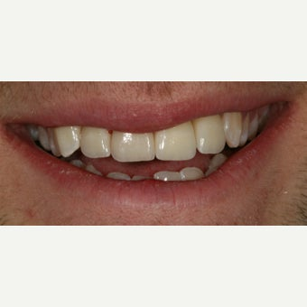 18-24 year old man treated with Dental Implants after 1815420