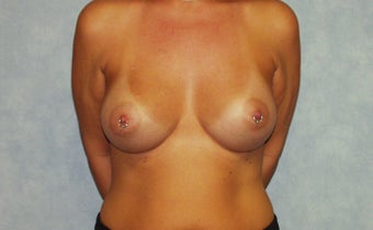 Breast augmentation on a 40 year old, 6 months post-op:  560cc saline breast implants, dual plane, infra-mammary approach.  after 982802